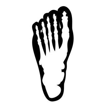 腳的X射線
